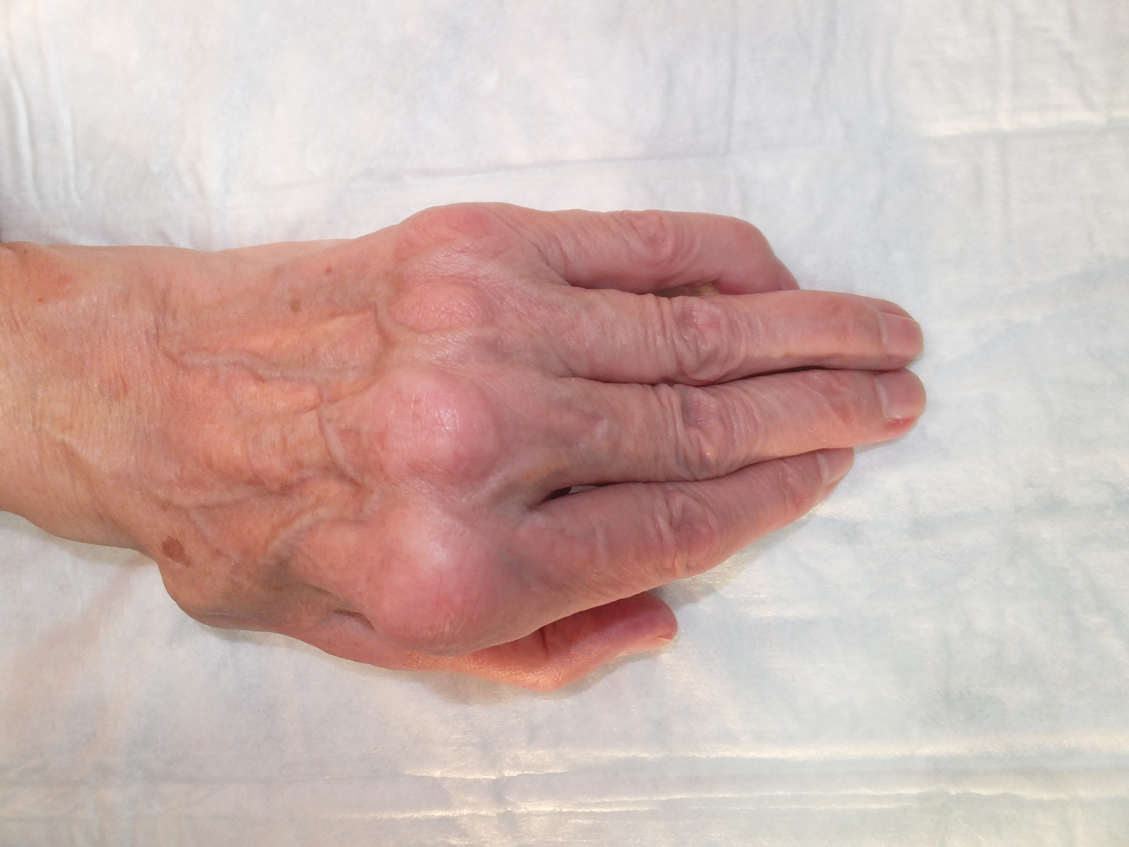 Wrist involvement in rheumatoid arthritis
