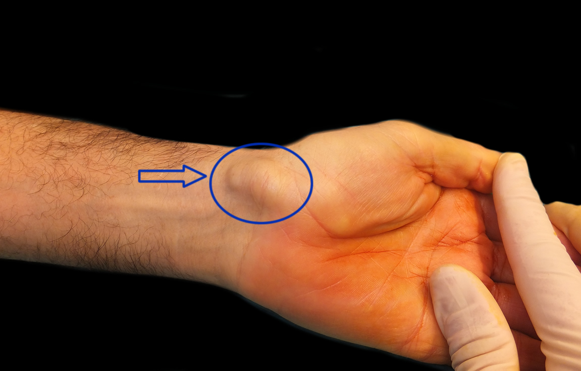 I have a bump on my wrist: the synovial cyst or ganglion
